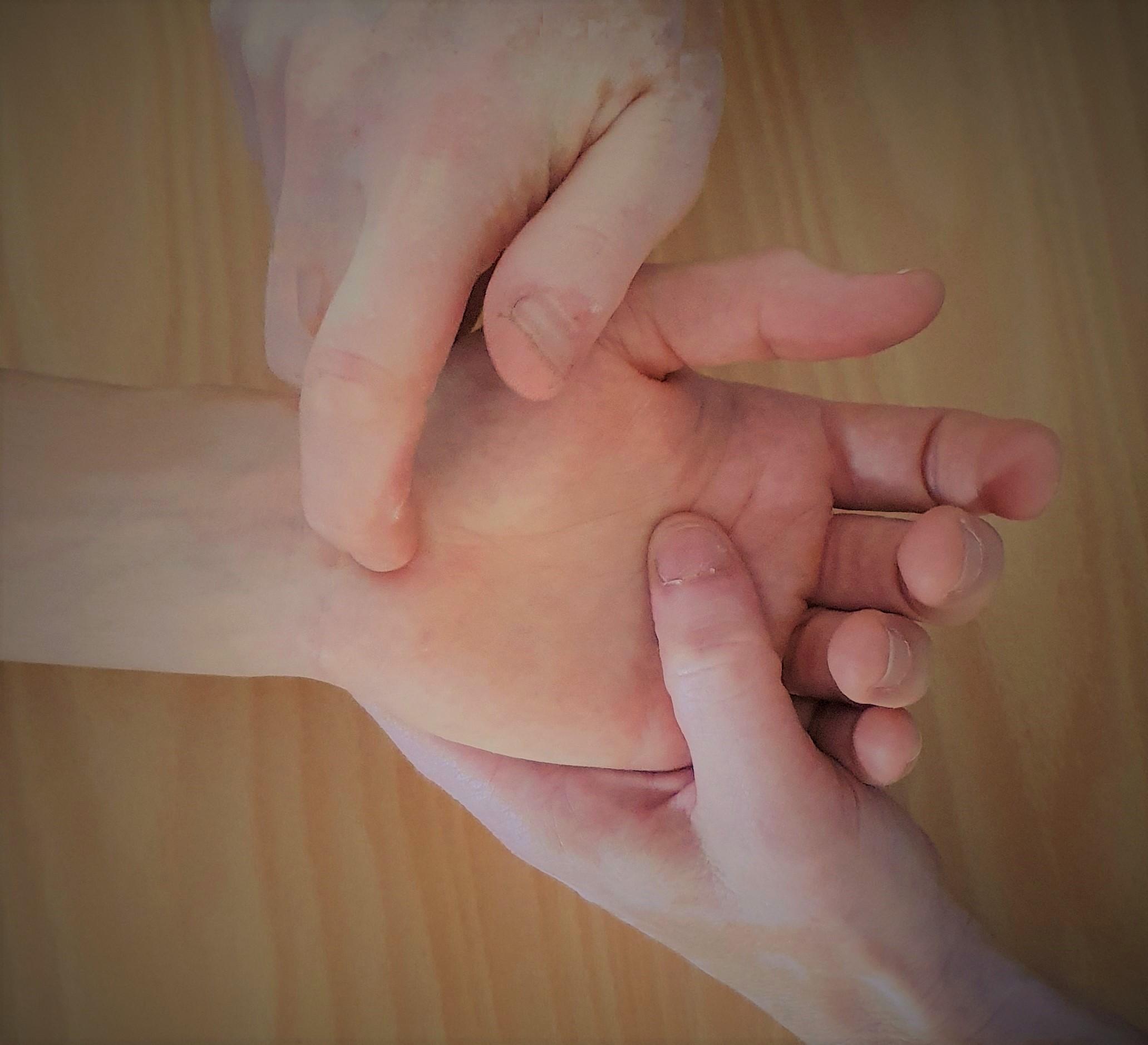 Bilden visar utförande av Tinels test vänster handled