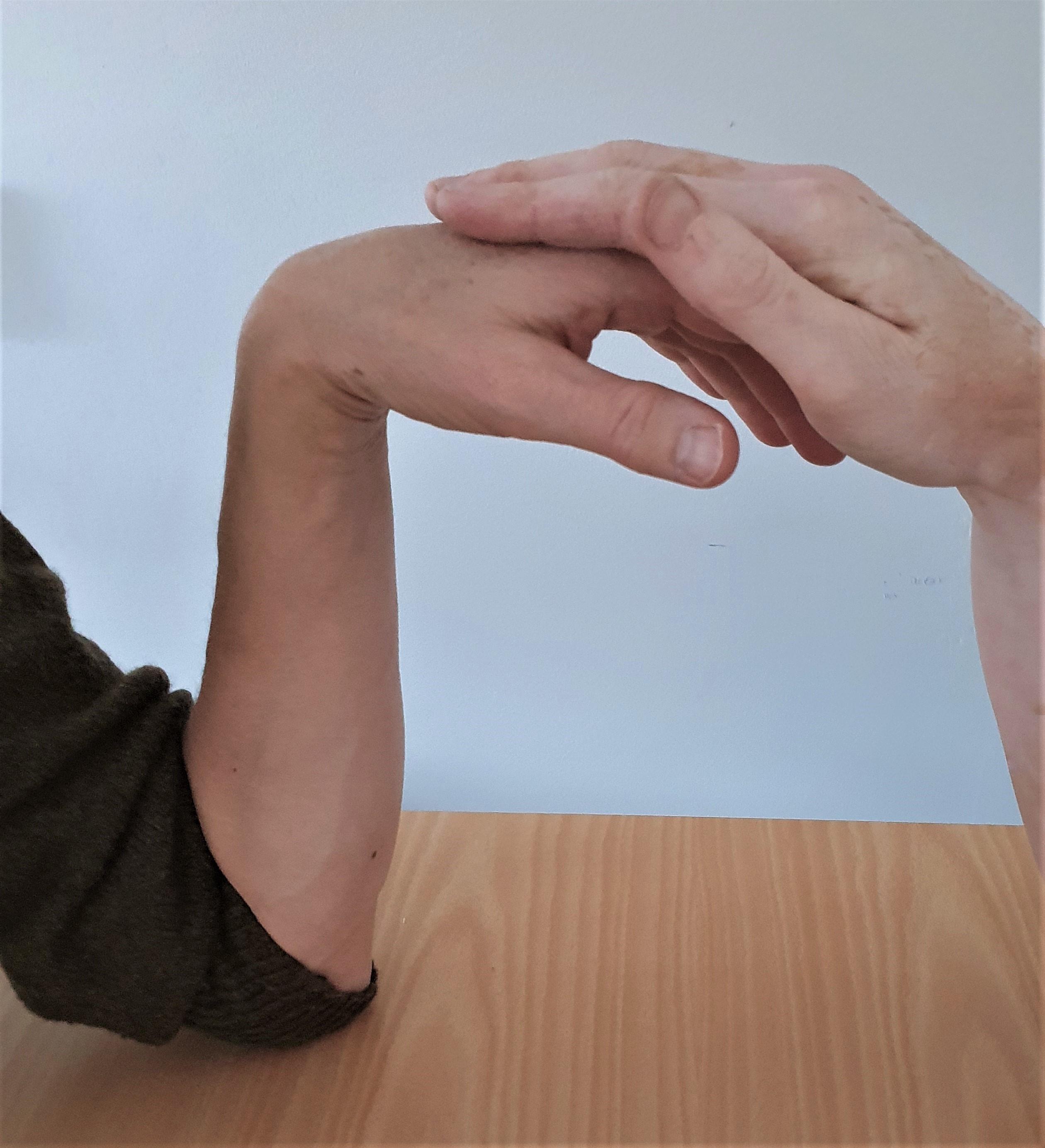 Bilden visar utförande av Phalens test vänster handled