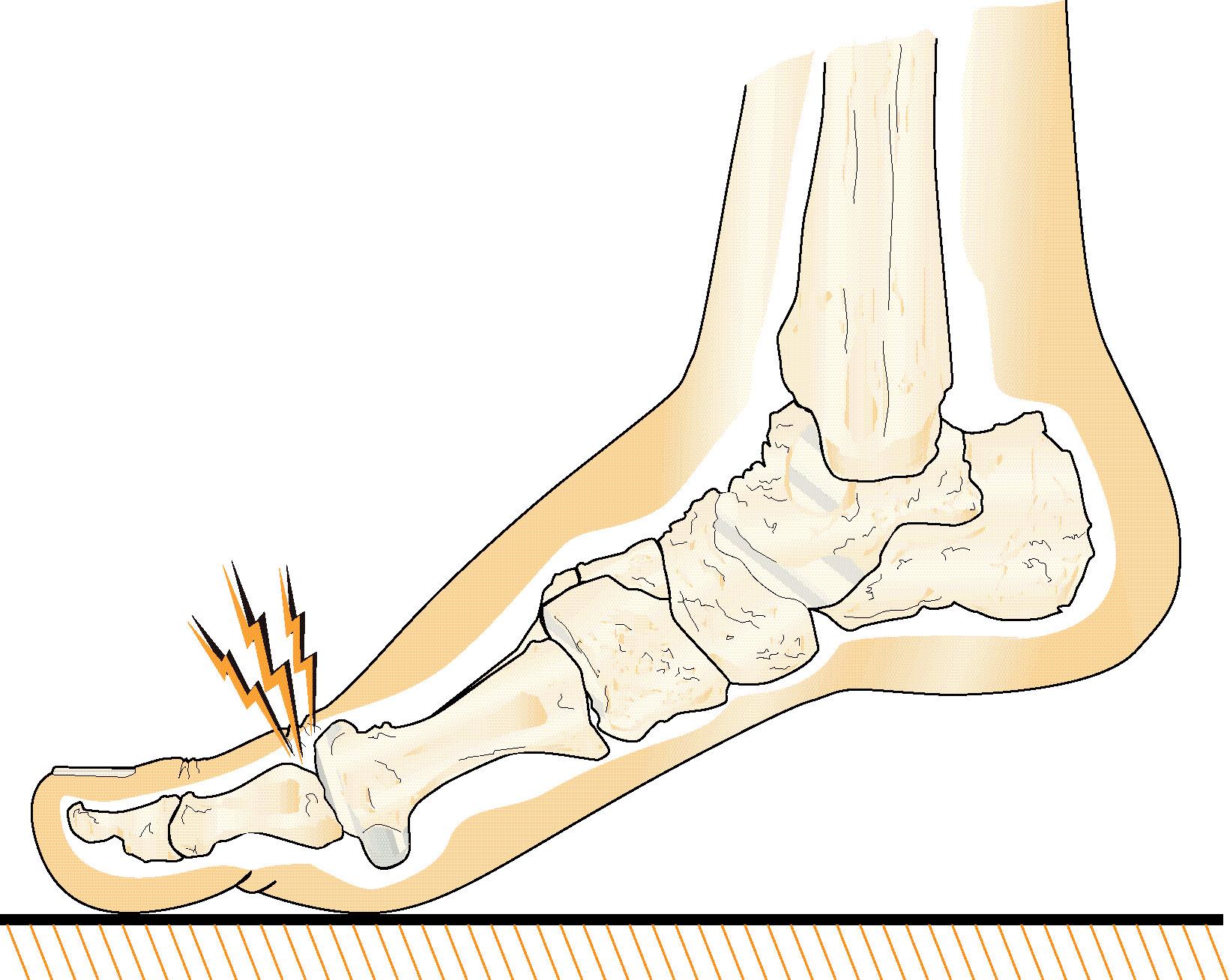 Illustration av fot med smärta på stortåledens ovansida.