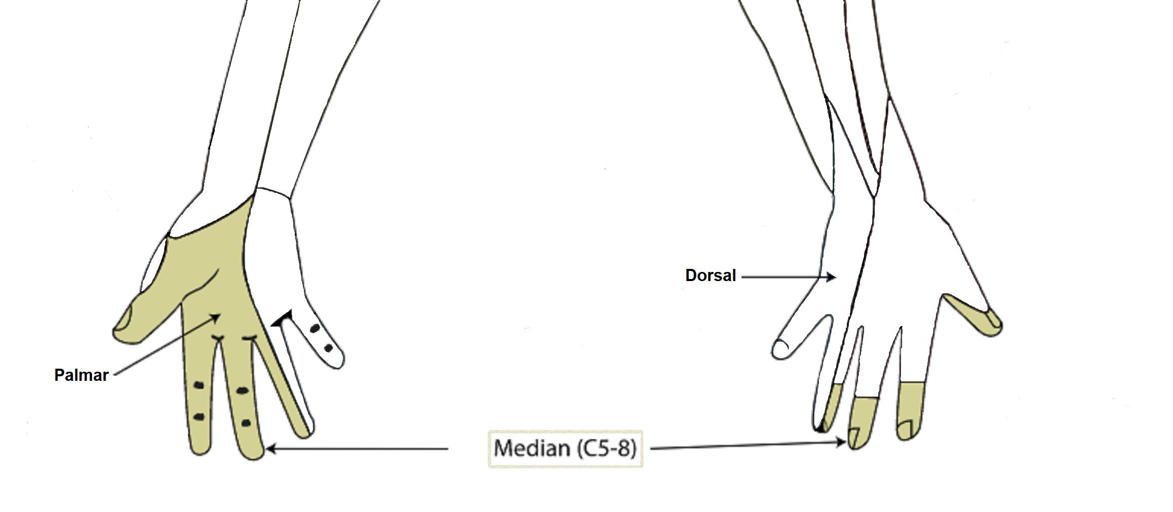 Bilden visar nervus medianus innervationsområde.