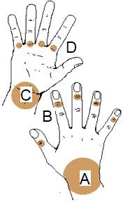 Bilden visar vanliga lokalisationer för ganglion på hand och fingrar (volart och dorsalt)